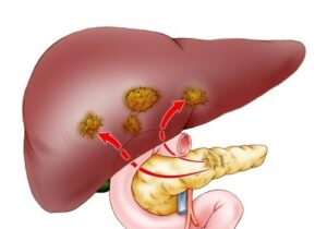 Patients with pancreatic cancer began to live longer